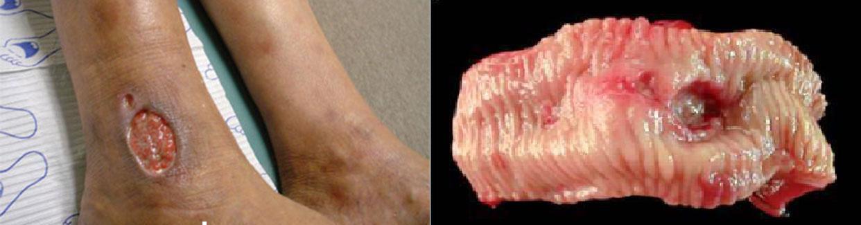 38925 546 چرا در بیشتر موارد درمان زخم معده ناموفق است؟