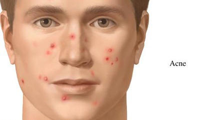 بیماریهای پوستی که در محل کار سراغتان میآید