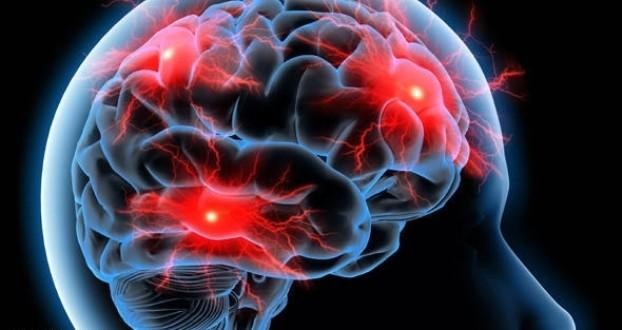 آهنربا، مؤثر در درمان سکتهمغزی در افراد