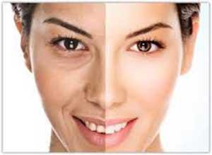 روش های طبیعی برای سفید کردن پوست