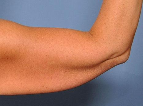 علت شل شدن پوست بعد از کاهش وزن چیست؟