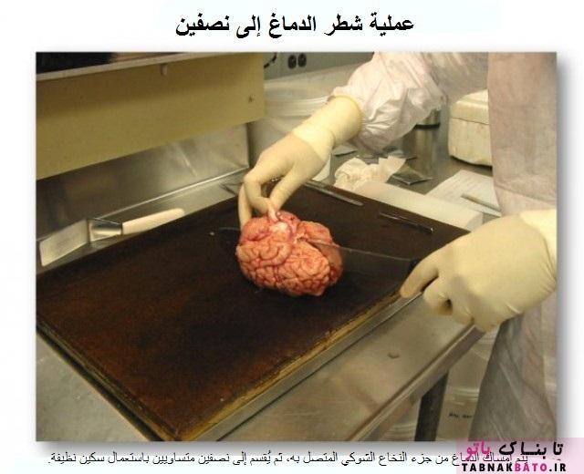 نگاهی به درون بزرگترین «بانک مغز» جهان