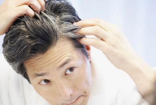 ویتامین هایی که از سفید شدن موها جلوگیری می کنند