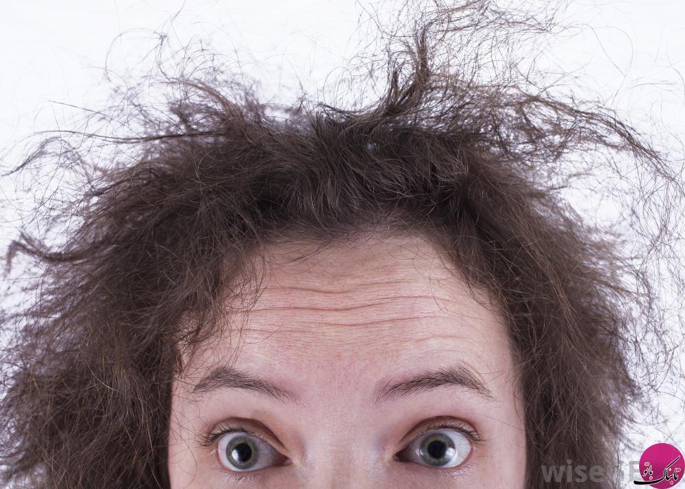 کشف بیماری های پنهان از موهای سر
