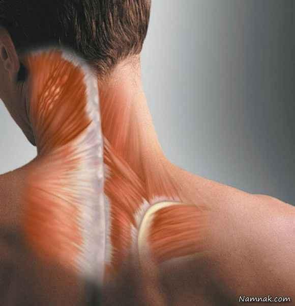 خطر سکته مغزی با شکستن قولنج گردن