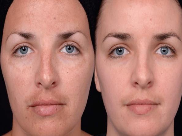 چرا پوست صورت دورنگ مي شود