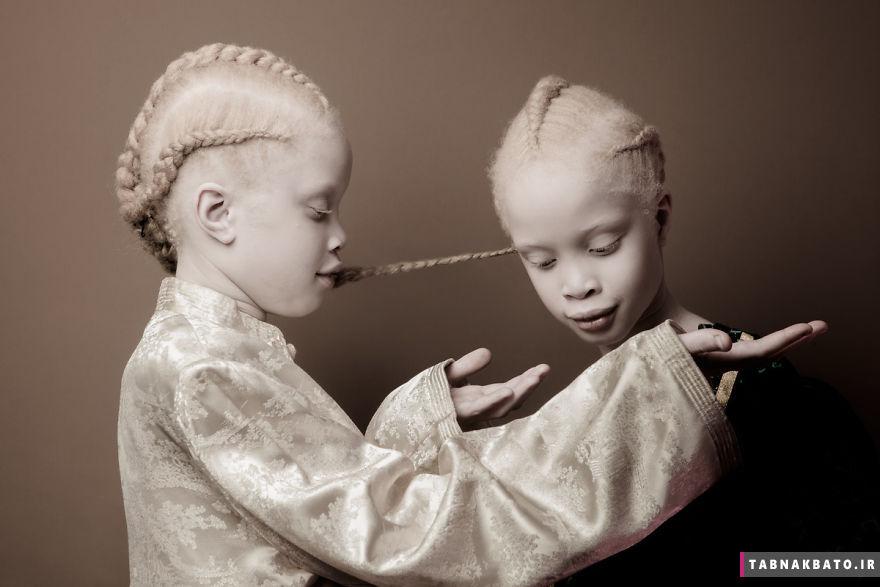 غوغای زیبایی خاص این دوقلوهای زال در صنعت مد