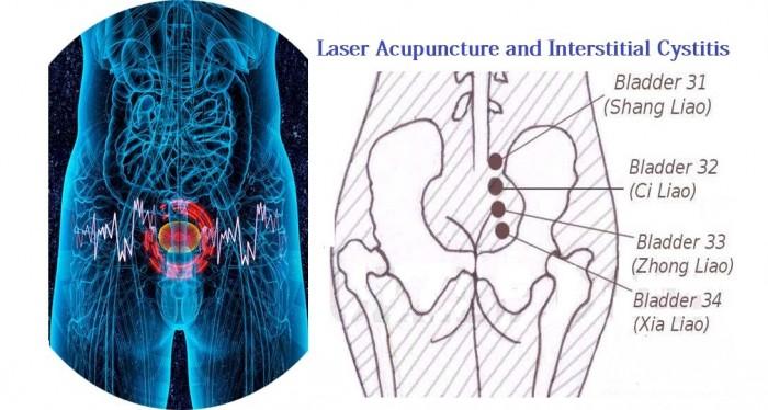 لیزر آکوپانکچر و درمان سیستیت بینابینی (IC)