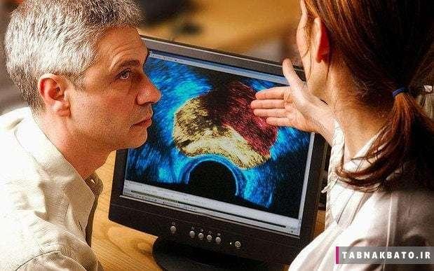 تشخیص وجود سرطان پروستات با یک آزمایش خون ساده