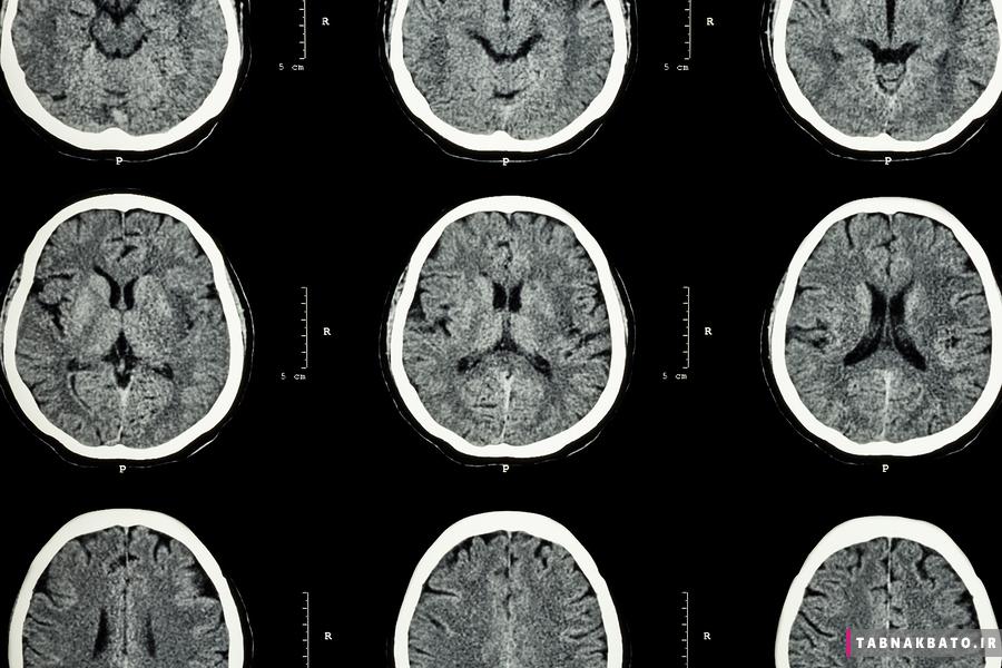 برخی از نشانه ها و علائم سکته مغزی