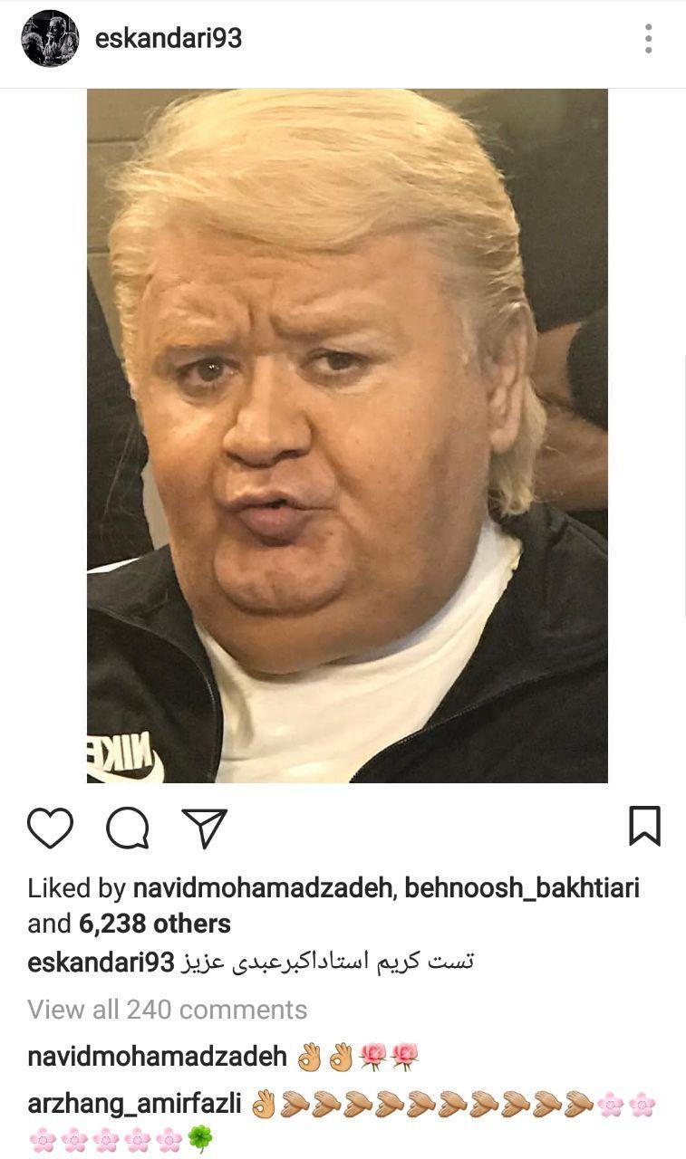 وقتی «اکبر عبدی»، ترامپ میشود+عکس