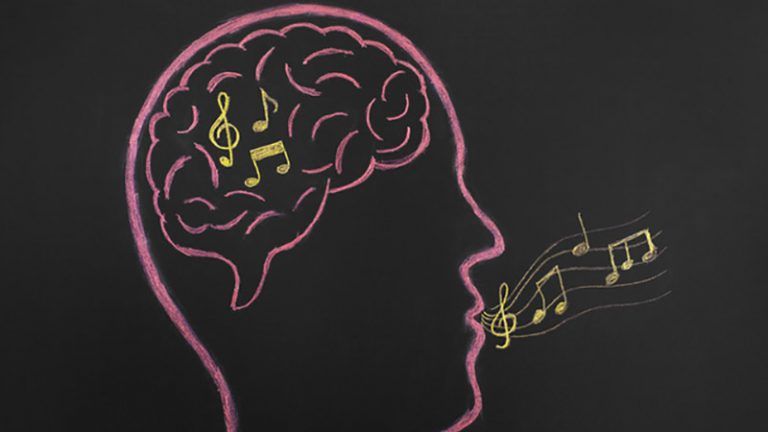 اسکن های مغز که میگویند چه آهنگی گوش کردهاید!