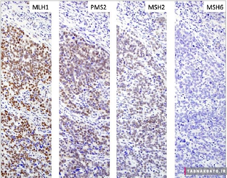 افزایش خطر ابتلا به سرطان سینه با جهش دو ژن
