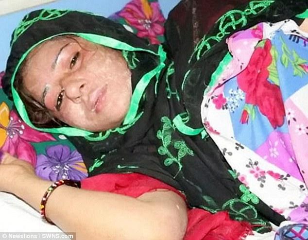 اسیدپاشی به همسر، تاوان زاییدن دختر +تصاویر