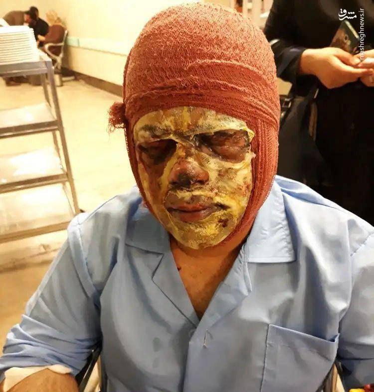 آسیبدیدگی مامور ناجا در چهارشنبهسوری (+۱۵)+عکس