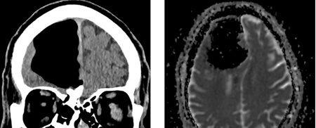 مردی که بخشی از مغزش ناپدید شد +تصاویر