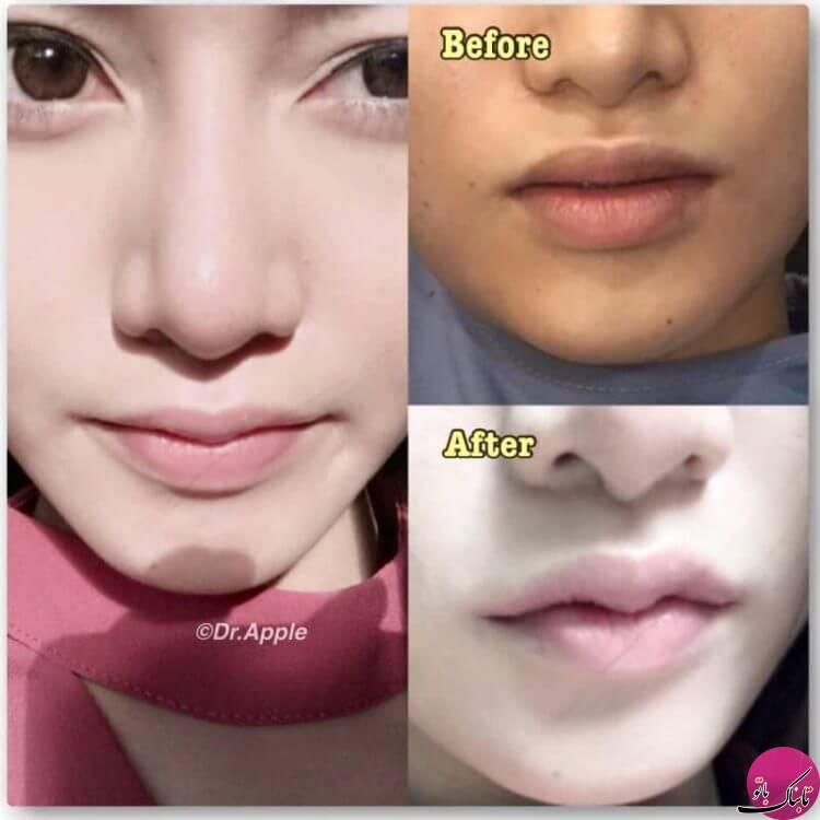 عمل جراحی زیبایی عجیب در تایلند