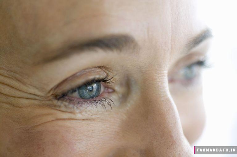 چگونه لوپوس روی چشمان شما اثر میگذارد؟