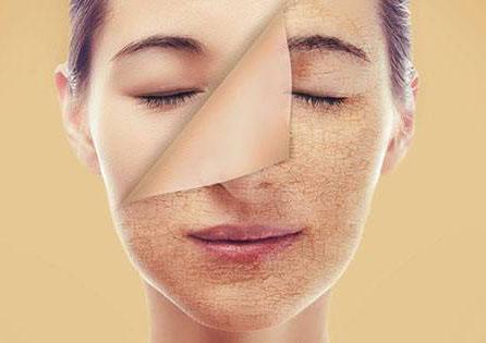پوست چرب آنقدرها هم که فکر می کنید بد نیست