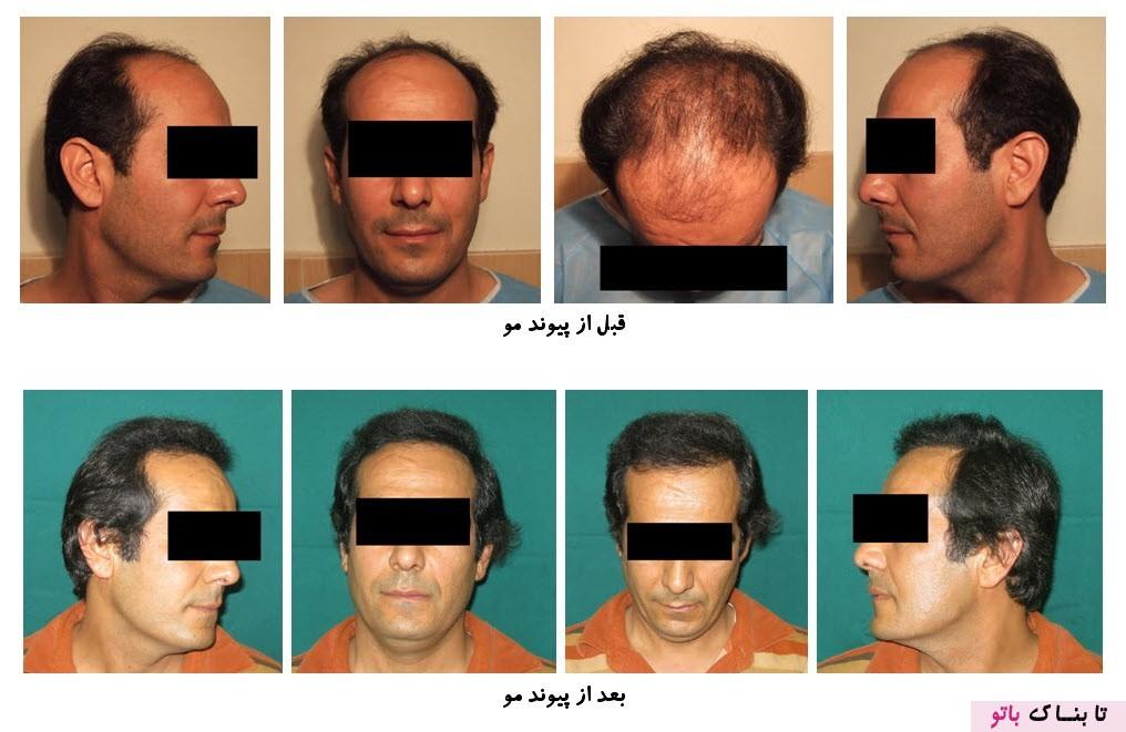 تصورات غلطی که در رابطه با کاشت موی طبيعی وجود دارد