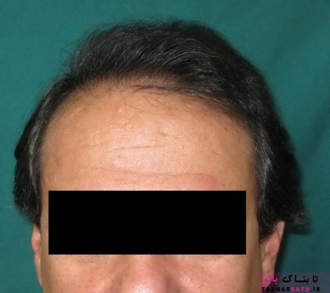تصورات غلطی که در رابطه با کاشت موی طبيعی وجود دارد(قسمت دوم)