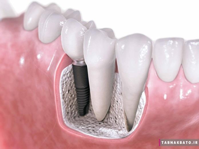 ایمپلنت دندان و همه ی مزایا و عوارضش
