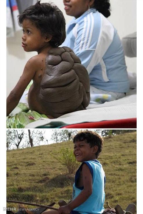 عجیبترین نشانههای مادرزادی در جهان +عکس