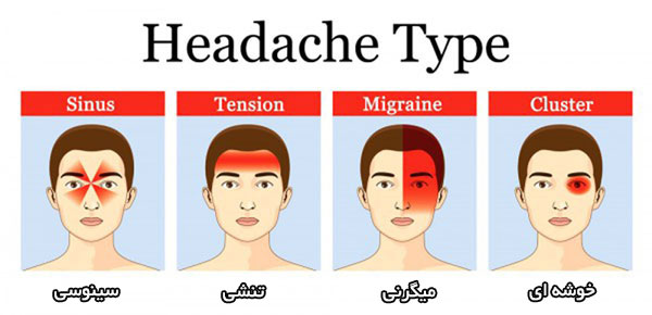 با انواع شایع «سر درد» آشنا شوید