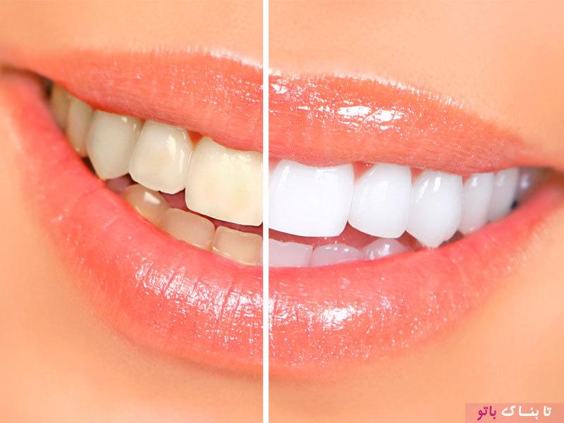 هفت اشتباهی که منجر به جرم دندان می شود
