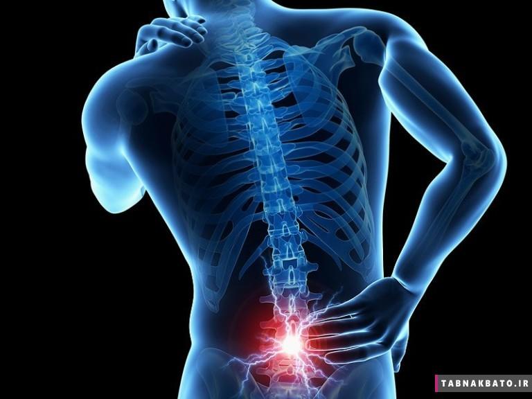 درمان کمردرد با نرمش های طبی