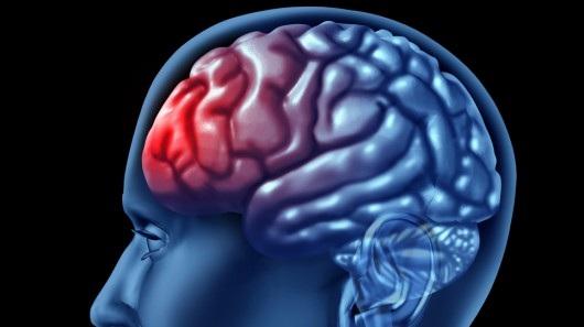 ۱۰ رفتار اشتباه که به مغز آسیب می زند