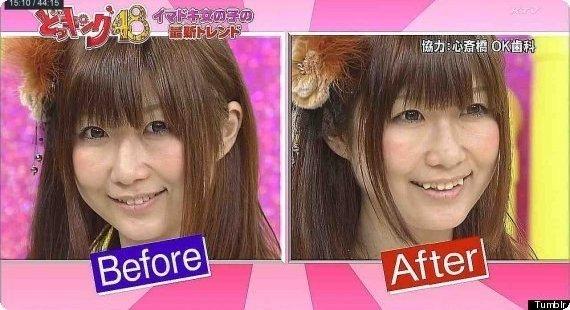 عمل زیبایی عجیب زنان ژاپنی