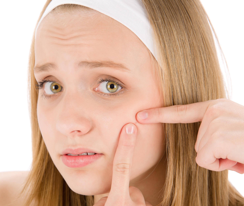 باورهای غلط درباره آکنه و مراقبت پوست