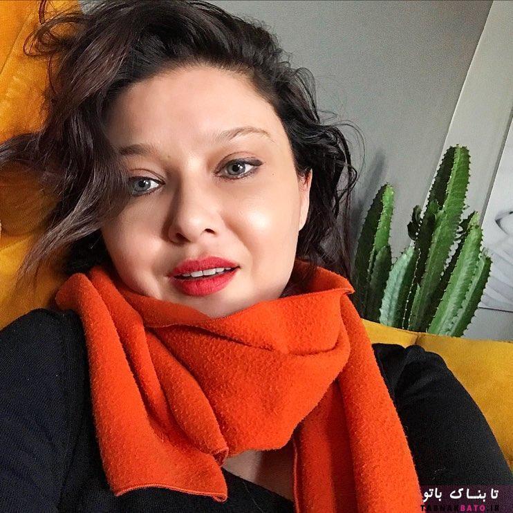 بازیگر معروف ترک پشیمان از عمل زیبایی