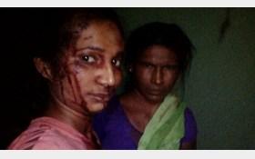 سلفی عجیب زن هندی پس از درگیری با ببر وحشی+عکس
