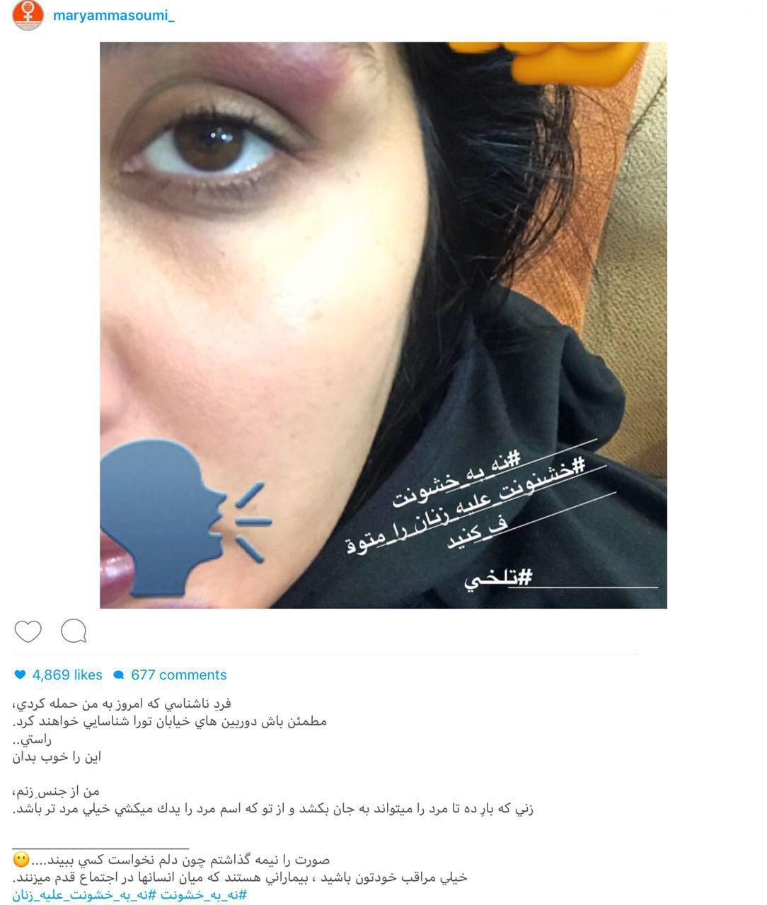 حمله فیزیکی به بازیگر زن ایرانی در خیابان +عکس