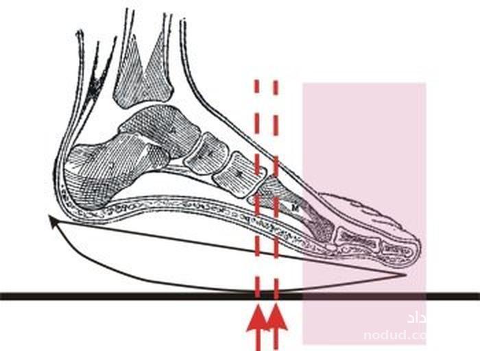 کفشهایی که کمردرد را درمان میکنند +عکس