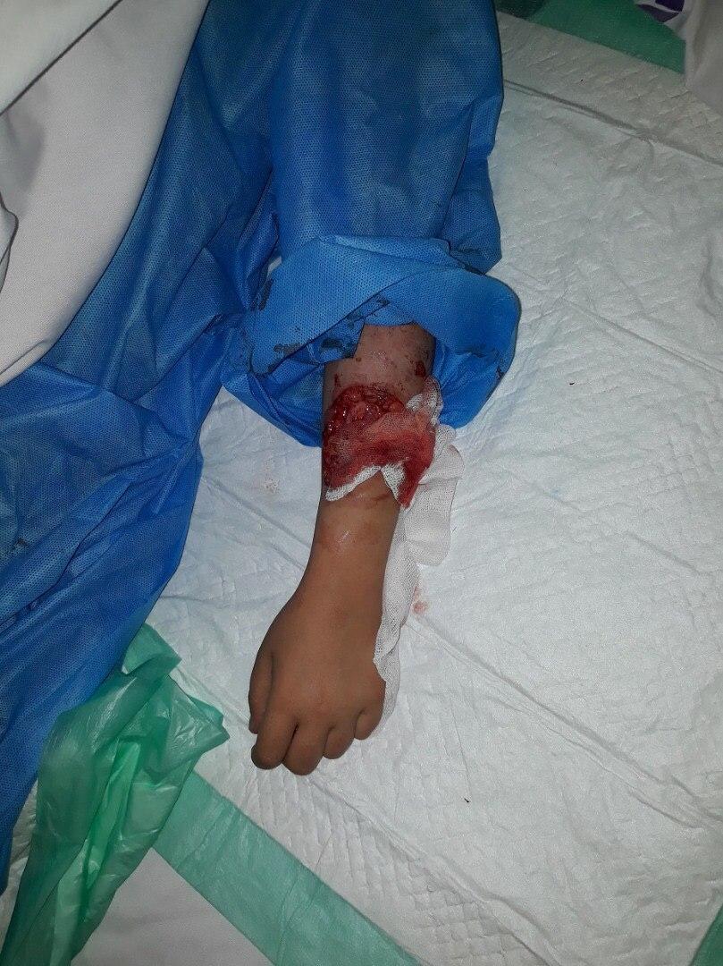 سگهای شکاری به یک دختربچه در لواسان حمله کردند +تصاویر