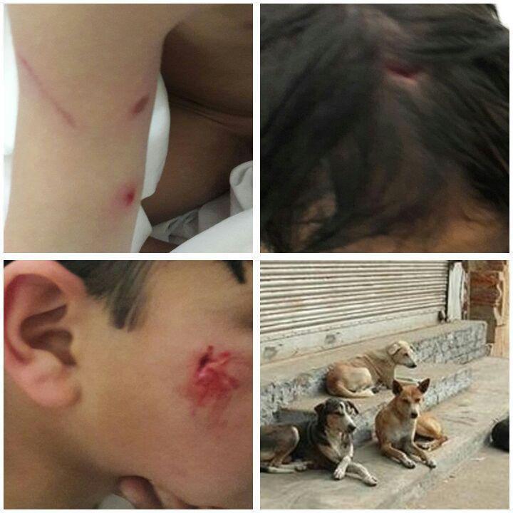 حمله سگ به یک کودک ۷ ساله در شهر تفت + عکس