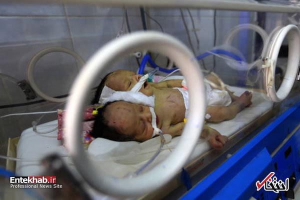 دوقلوهای به هم چسبیده یمنی+عکس