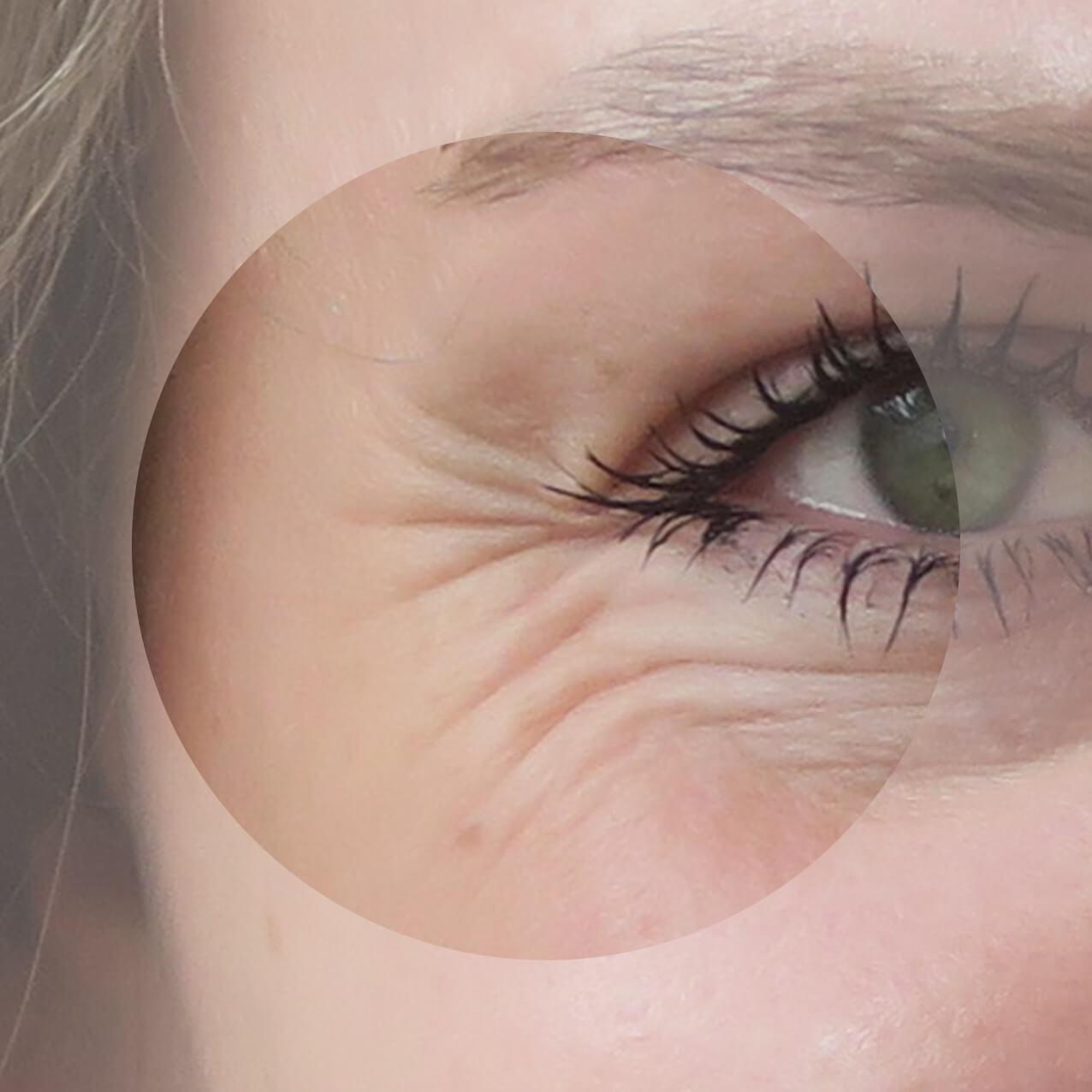 درمان چروک و خطوط پنجه کلاغی در اطراف چشم