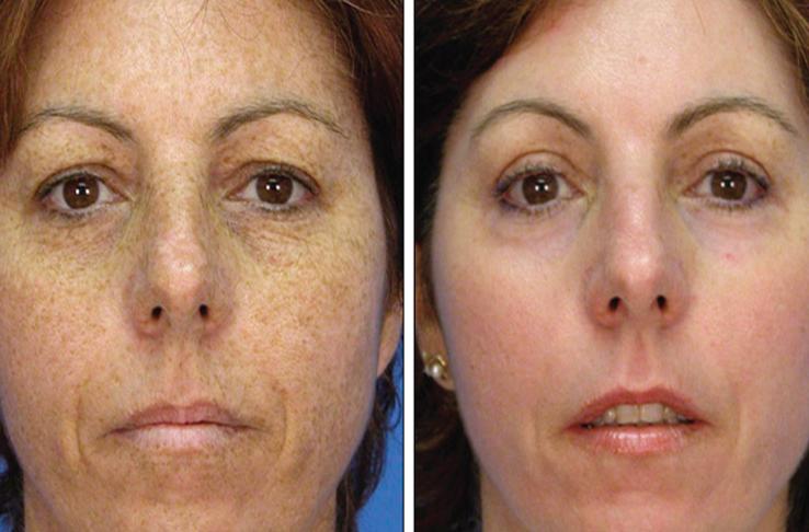 ماسکهای صورت خانگی برای رفع لک قهوهای صورت