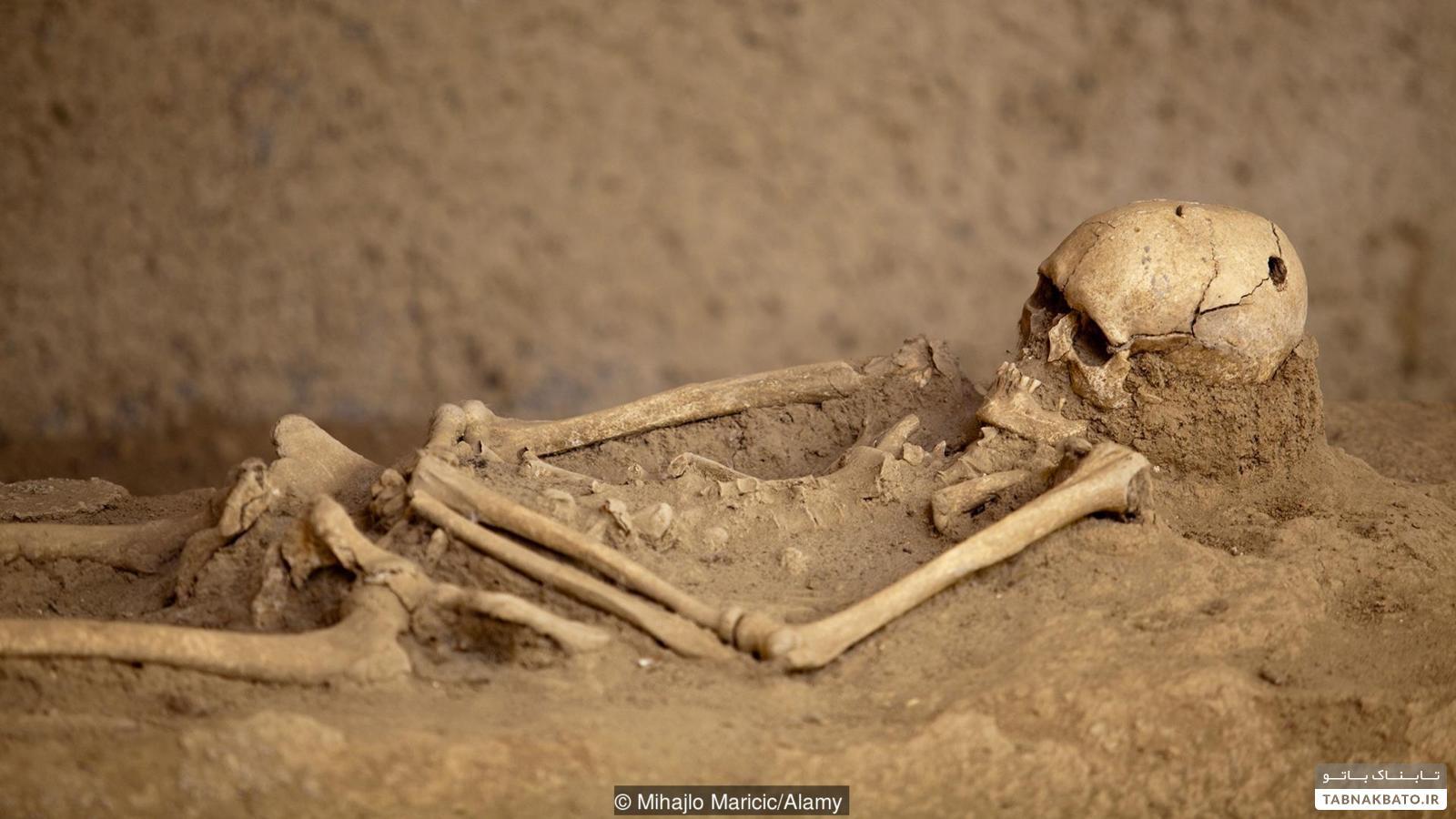 چرا انسانهای باستان جمجمه را سوراخ میکردند؟