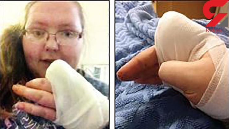 زن جوان از شدت درد انگشتش را با تبر قطع کرد +عکس