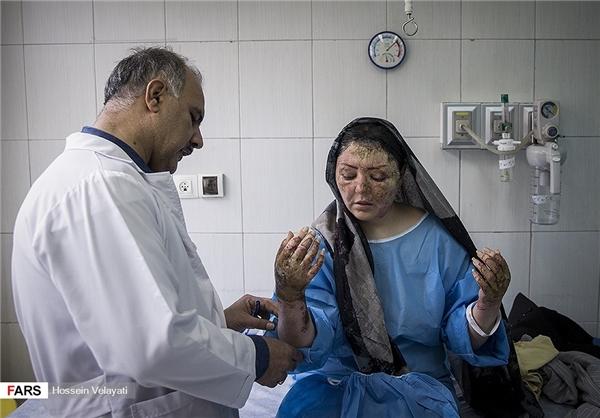 آخرین وضعیت درمانی قربانی اسید پاشی تبریز +تصاویر