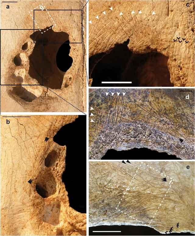 انتشار نخستین تصویر از جمجمـه سه هزار ساله تهران عمل جراحی ۵۰۰۰ ساله روی جمجمـه+تصاویر mimplus.ir