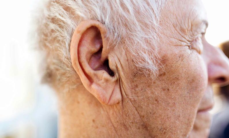 پیرگوشی، عارضه ای در دوران سالمندی