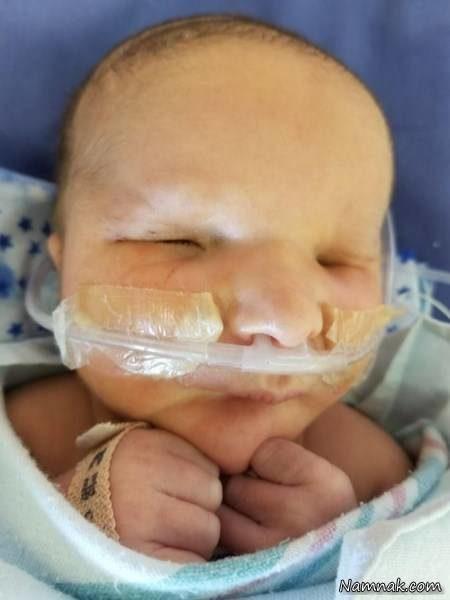 تولد نوزاد بدون چشم همه را شوکه کرد+تصاویر