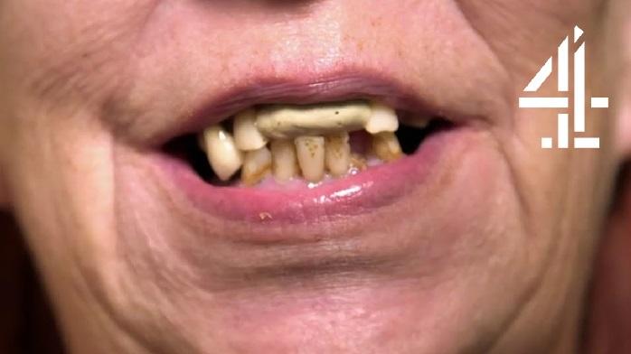 مضرات دندان پوسیده چیست؟