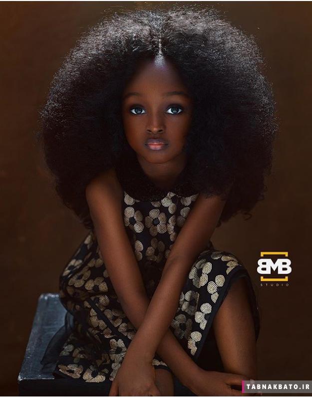 چهره ی شگفت انگیز زیباترین کودک دنیا